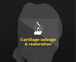 Cartilage service